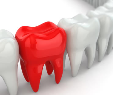 Emergency dentist in Federal Way