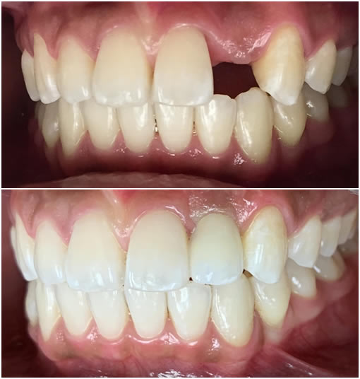 teeth-whitening-and-dental-implant